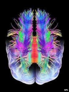 _66756698_braincopy